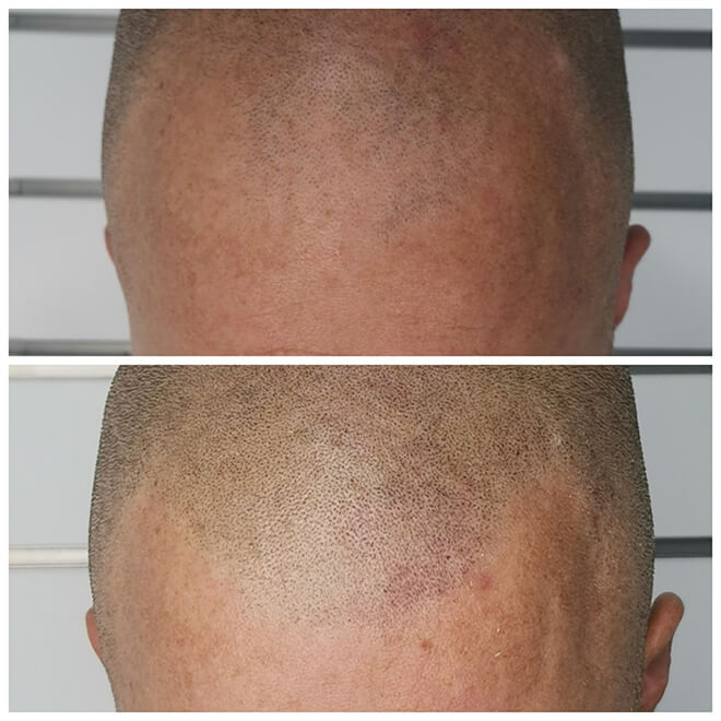 Scalp Micropigmentation - Example 1