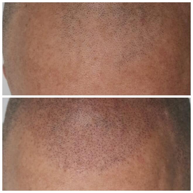 Scalp Micropigmentation - Example 2