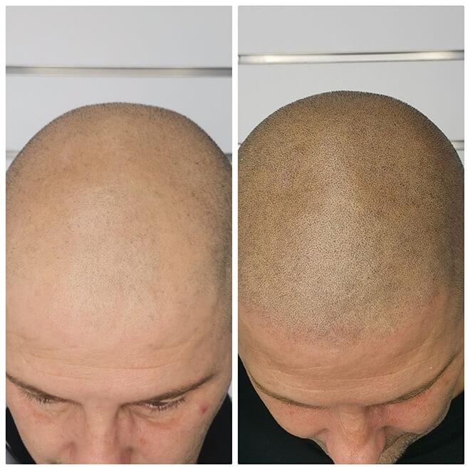 Scalp Micropigmentation - Example 3