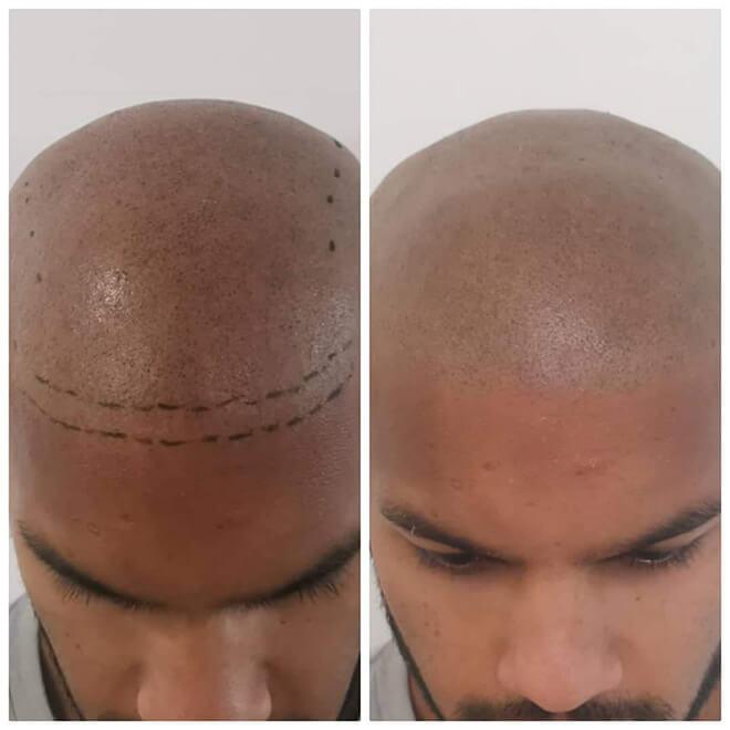 Scalp Micropigmentation - Example 4