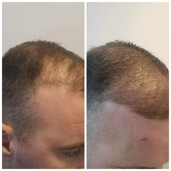 Scalp Micropigmentation - Example 5