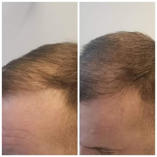 Scalp Micropigmentation - Example 6