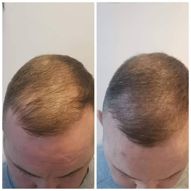 Scalp Micropigmentation - Example 7