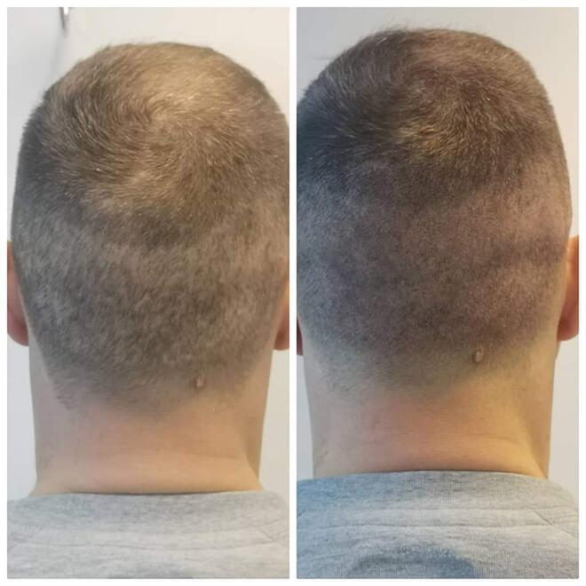 Scalp Micropigmentation - Example 8