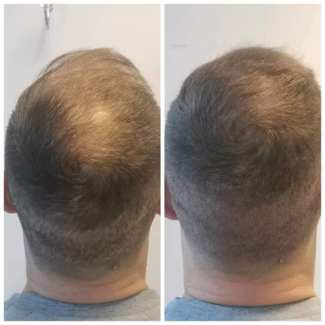 Scalp Micropigmentation - Example 9
