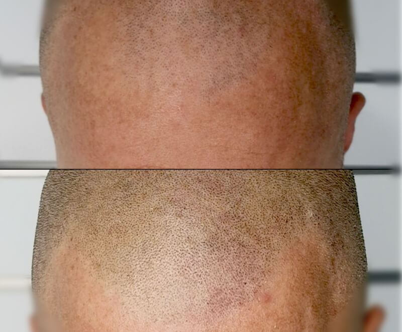 Male scalp before and after treatment
