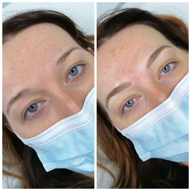 Semi Permanent Make-up Results - Eyebrows 1