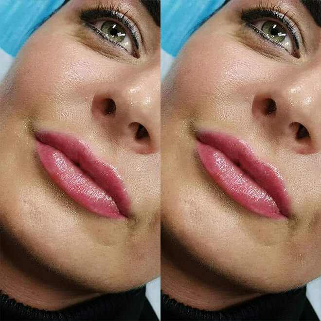 Semi Permanent Make-up Results - Lips 3